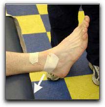 Appearance of the Mulligan Taping Technique for Ankle Sprains. Arrow ...